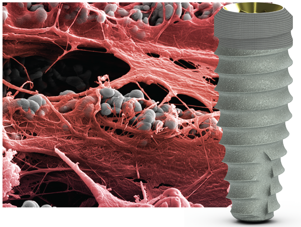 Laser-Lok е единствената обработка на повърхността, която доказано предизвиква съединително-тъканно прикрепване