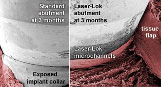 Вариацията и здравината на захващането на тъканите на стандартни и Laser-Lok®  надстройки